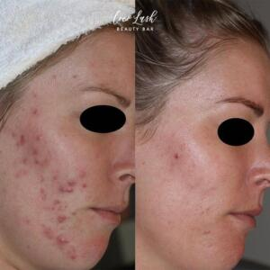 Clarify Peel Before & After