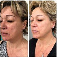 Refine Peel Before & After