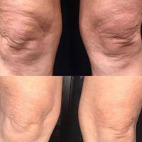 TCA Peel Knees Before & After